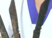 Médicos retiran cuchillos estómago hombre India