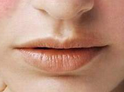 Lupus: lobo silencioso devora mujeres