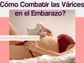 ¿Cómo combatir Várices Embarazo? Sigue estos sencillos consejos