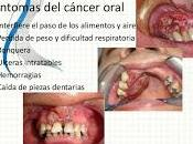 Cancer Oral esta Incrementando Mundo