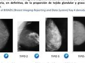 depende sensibilidad mastografia?