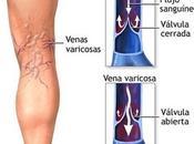 Consejos para prevenir varices
