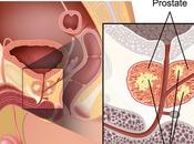 Combinacion Agresiva Puede Curar Cancer Prostata