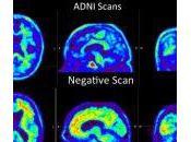 Asociación entre Factores Riesgo Vascular edad media depósitos Amiloide Cerebral.