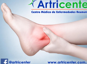Artritis tobillo