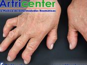 ¿Qué osteoartritis avanzada?