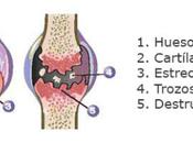 Evolución osteoartritis