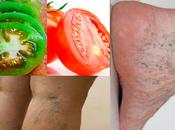 Cómo Eliminar Venas Varices Tomates Rojos Verdes