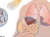Cambio Climatico Incrementara Infecciones Hantavirus