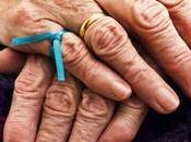 Demencia Alzheimer: signos, síntomas opciones tratamiento