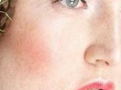Beneficios aceite coco para nuestra piel