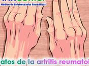 datos artritis reumatoide debes conocer