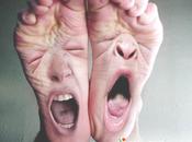Fibromialgia: dolor cabeza pies