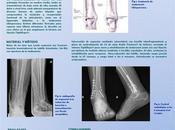 Poster sobre Sistema TightRope Fracturas Tobillo