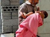 Noticias Yemen. Niños Mueren Diariamente