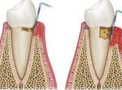Internet puede ayudarte elegir mejor póliza dental