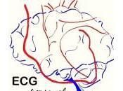 Electrocardiógrafo Personal**, invención directa corazón ictus