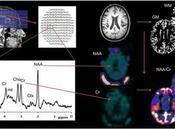 """personas creen investigación confiable cuando incluyen imágenes cerebrales """"extrañas"""""""