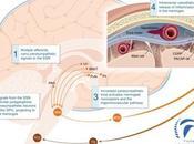 Fisiopatología migraña. ¿por sucede migraña? ¿qué implicaciones clínicas tiene?