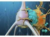 Nueva Terapia para Accidente Cerebrovascular Isquémico