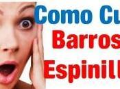 Como Quitar Barros Rapido Facil Rindas Todavía!