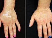 Solución para Vitiligo