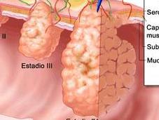 Prevenir cáncer colon