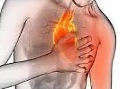 Enfermedad reflujo ácido puede causar palpitaciones corazón?