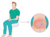 Evitar roscos tipo flotador para prevenir úlceras presión glúteos