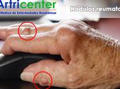 Artricenter: nódulos reumatoides: son, ¿cómo evolucionan cómo tratan?