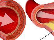 consejos para reducir colesterol