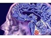Neuroartículo: Excesivo crecimiento superficie cortical antes años niños autismo