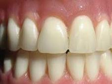 dentadura postiza salva vida