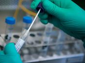 confirma primer caso Coronavirus Luis Potosí