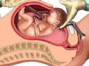 Cómo evitar cesáreas innecesarias