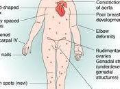 síndrome Turner