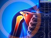 ¿Qué artrosis acromioclavicular?