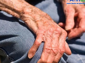 Artritis reumatoide osteoporosis