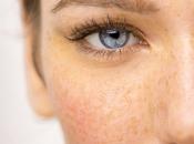 Descubre cómo prevenir, tratar disimular manchas rostro Otoño