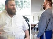 """""""Pasé pequeño obesidad mórbida"""""""