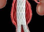 Reparado aneurisma aorta abdominal paciente epoc severa endoprótesis fenestrada medida