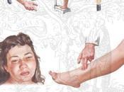 Preeclampsia grave antes semana gestación