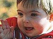 Para muchas familias, síndrome Down tiene aspecto positivo