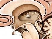 cerebelo funciones motoras