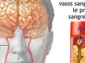síntomas 'silenciosos' derrame cerebral