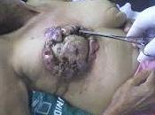 Prueban éxito vacuna contra cáncer mama