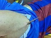 Imagen impactante astilla clavada jugador fútbol sala