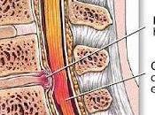 Dolor Lumbar Hernia Discal,
